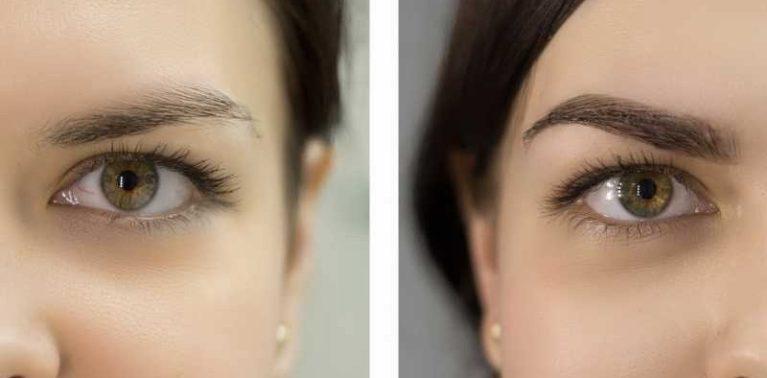 Ламинирование — это покрытие бровей оздоравливающим средством с сопутствующей коррекцией их формы и цвета
