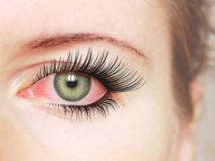 Покраснели и болят глаза после наращивания: кто виноват и что делать?